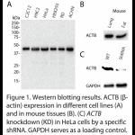 ACTB Polyclonal Antibody (20 μl)
