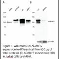 ADAM17 Polyclonal Antibody (20 μl)