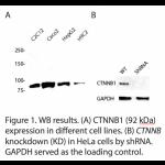 CTNNB1 Polyclonal Antibody (20 μl)