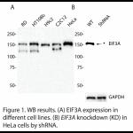 EIF3A Polyclonal Antibody (20 μl)