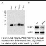 EIF4EBP1 Polyclonal Antibody (20 μl)