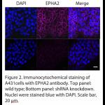EPHA2 Polyclonal Antibody (20 μl)