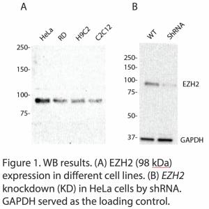 EZH2 Polyclonal Antibody (20 μl)