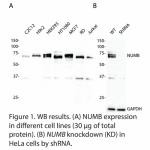 NUMB Polyclonal Antibody (20 μl)