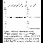 PPP2CA Polyclonal Antibody (20 μl)