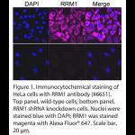 RRM1 Polyclonal Antibody (20 μl)