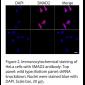 SMAD2 Polyclonal Antibody (20 μl)