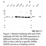 STK4 Polyclonal Antibody (20 μl)