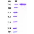 EGFR Protein (His Tag) , Human