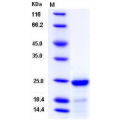 FGF21 Protein (His Tag),Mouse